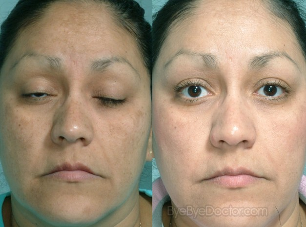 Melasma Treatment Pictures Causes Symptoms Cure