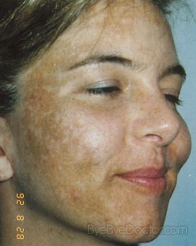Melasma Pictures 19