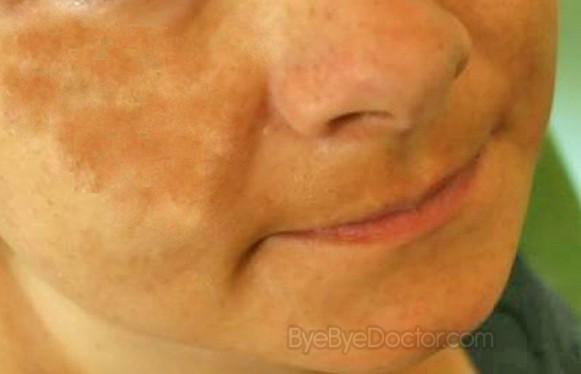 top skin lightening cream for dark skin