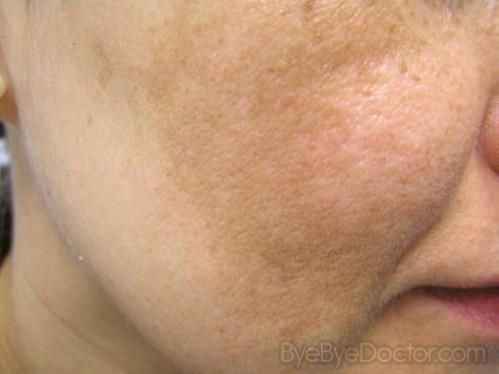 La maladie de la peau ekssoudativnyj le psoriasis