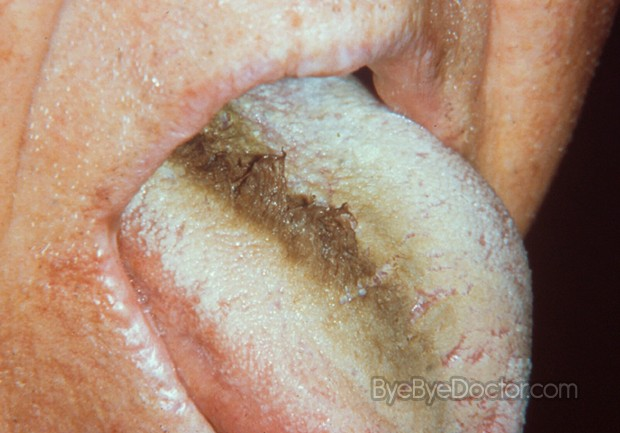 hairy tongue disease pictures