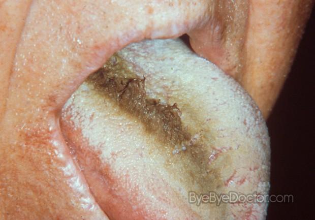 White hairy tongue treatment