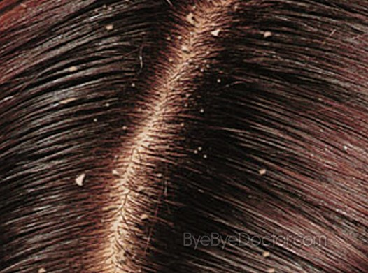 Dandruff – Treatment, Causes, Home Remedies, Pictures