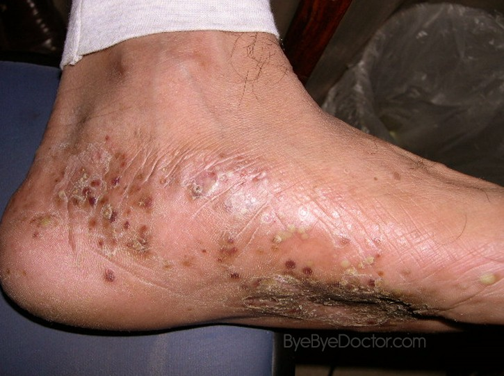 eczema psoriasis treatment