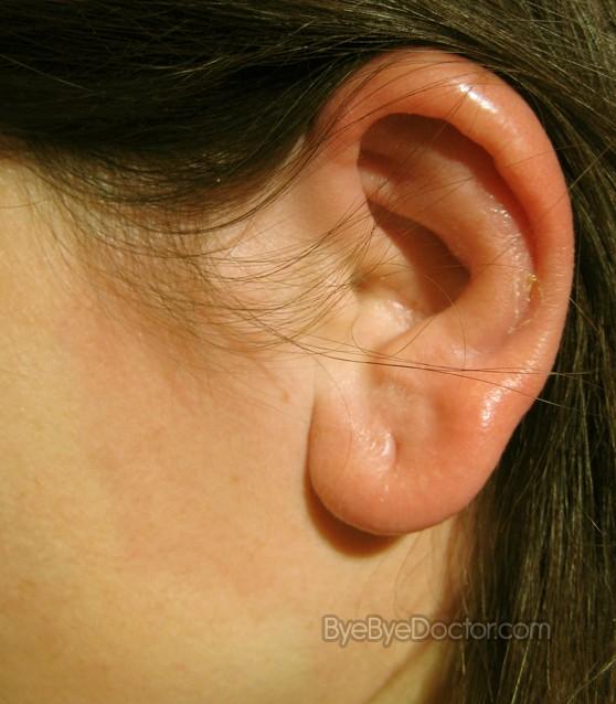 Erysipelas Pictures Symptoms Causes Treatment