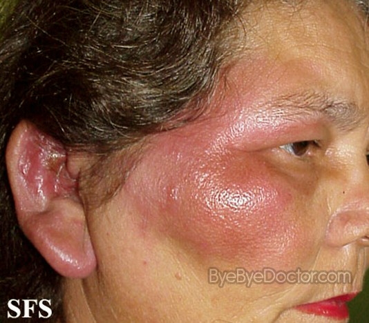 erysipelas – pictures, symptoms, causes, treatment, Skeleton