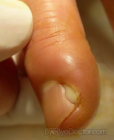 Fingernail Infection Pictures No Related Posts