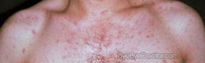 hiv rash – pictures, symptoms and treatment, Skeleton
