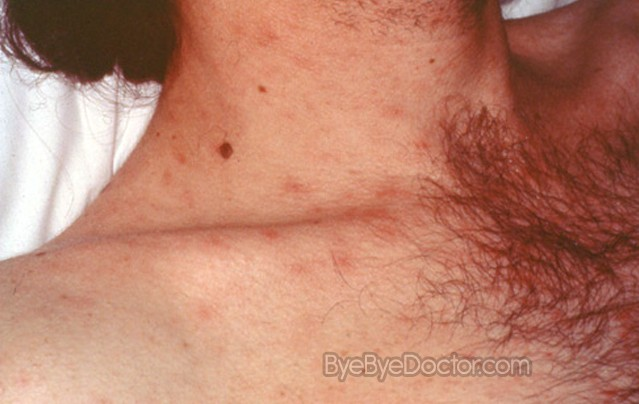 HIV Rash – Pictures, Symptoms and Treatment