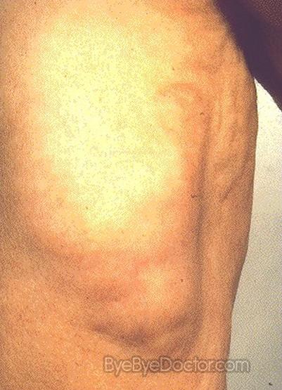 Lipomas Fatty Lumps Under the Skin