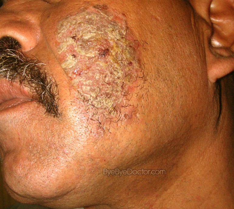 Granuloma annulare symptoms causes and natural treatment - Pemphigus Vulgaris Pictures Symptoms Causes And Treatment