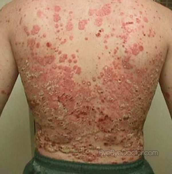plaque psoriasis pictures symptoms causes treatment. Black Bedroom Furniture Sets. Home Design Ideas