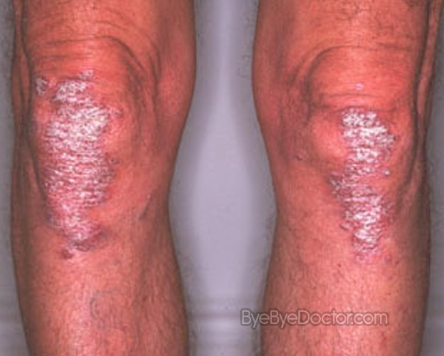 Martin, MD More from WebMD Psoriasis Drug Raptiva 2