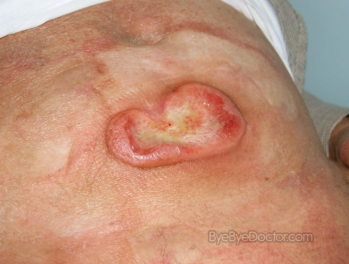 Pictures of Skin Rashes - Skin Rash ... - Healthy-skincare.com