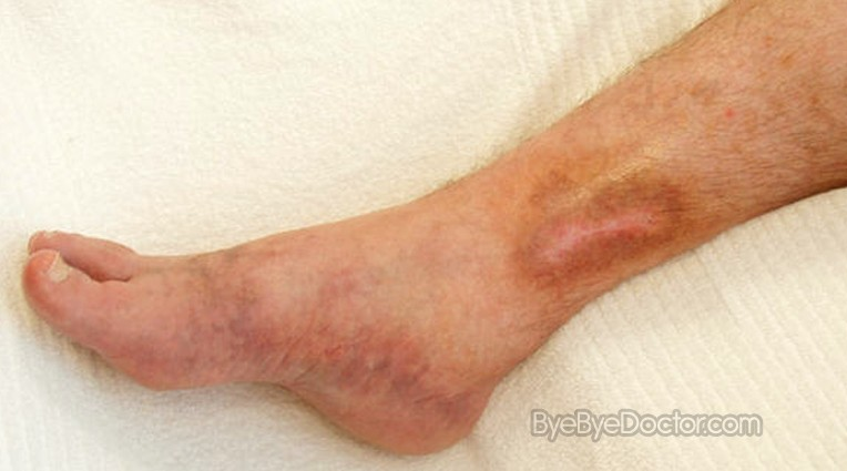 Venous ulcer - Wikipedia