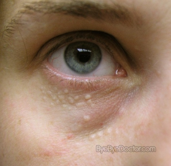 Syringoma Natural Treatment