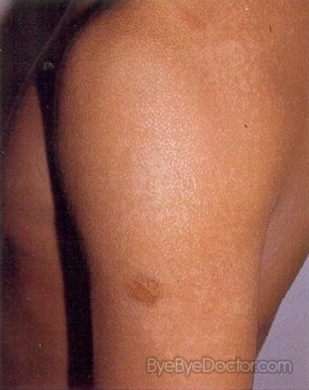 skin fungal treatment