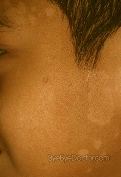 Can you have Tinea Versicolor on your face? - Dermatology ...