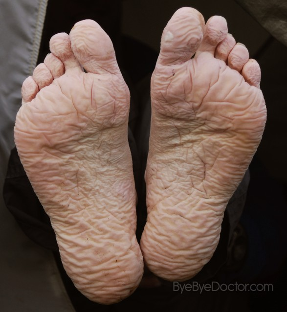 Trench Foot  U2013 Pictures  Symptoms  Causes  Treatment  Cure
