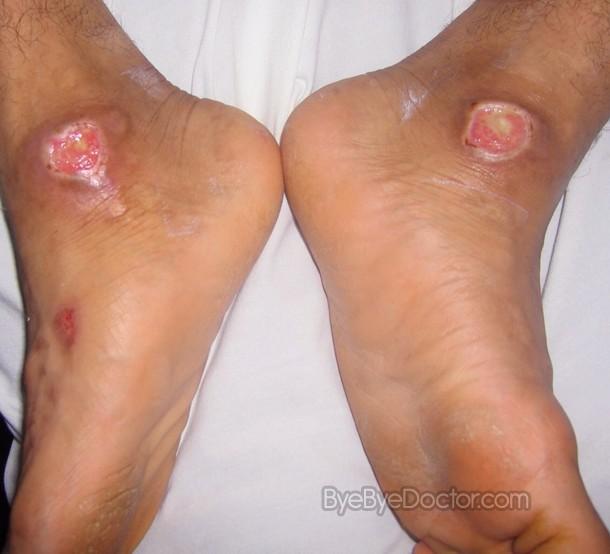 Diabetic Foot Problems – Pictures, Causes, Symptoms, Treatment