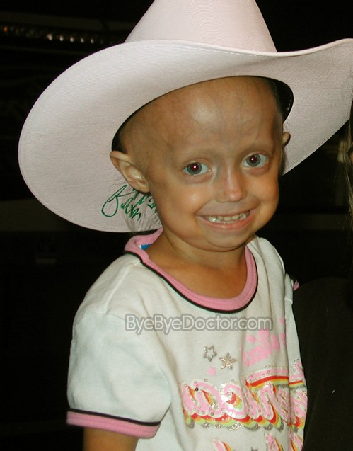 an overview of the causes of progeria its symptoms and treatment Progeria (hutchinson-gilford progeria syndrome): symptoms workup diagnosis treatment complications causes epidemiology incidence prognosis check at symptomacom progeria is a rare genetic disorder wherein children age rapidly due to genetic defect such a kind of disease was first described in the year 1886 by jonathan.