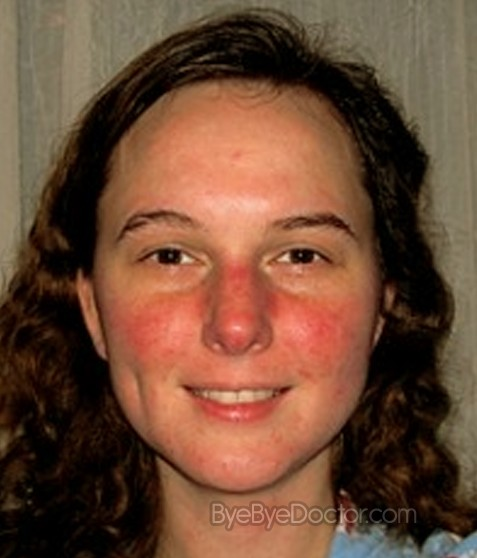 Natural Treatment Rosacea Redness