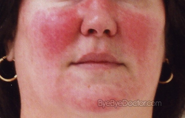Eczema During Pregnancy >> Rosacea