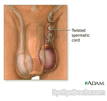 Testicular Torsion Symptoms Surgery Pictures Causes Treatment