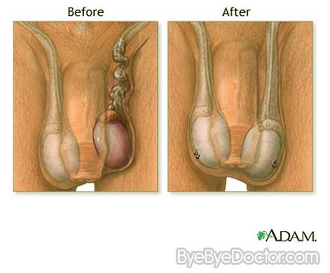 steroid testical shrinkage
