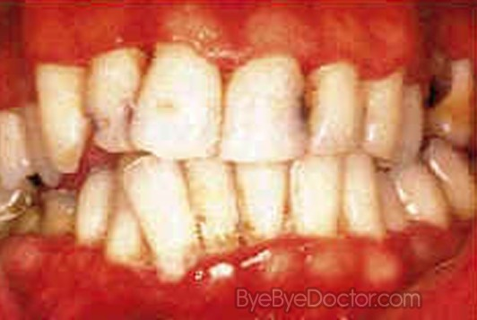 trench mouth – symptoms, treatment, pictures, causes, Skeleton