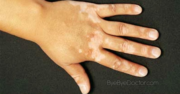 white spots on skin - hands
