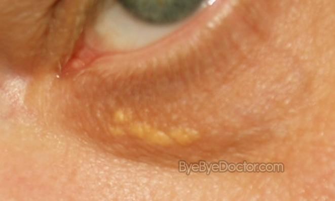 white spots on skin near eye