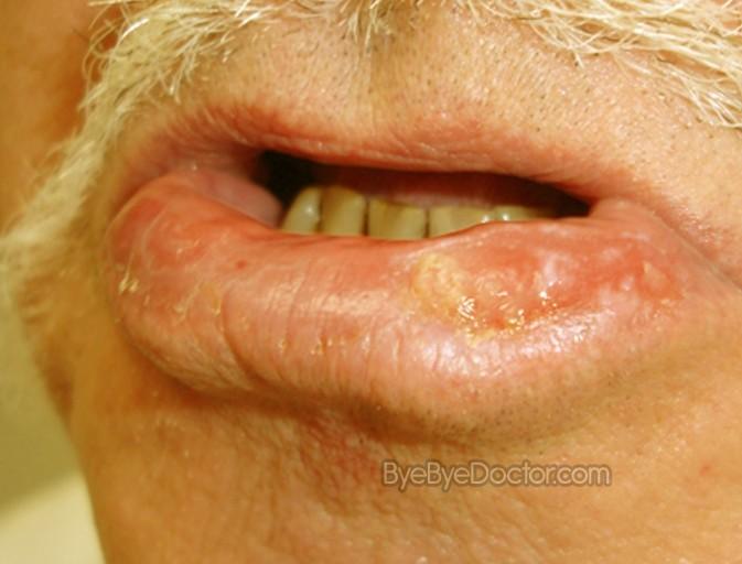 Actinic Cheilitis