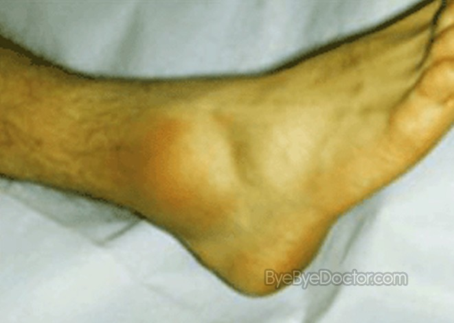 Ankle Sprain – Treatment, Recovery Time, Exercises ...