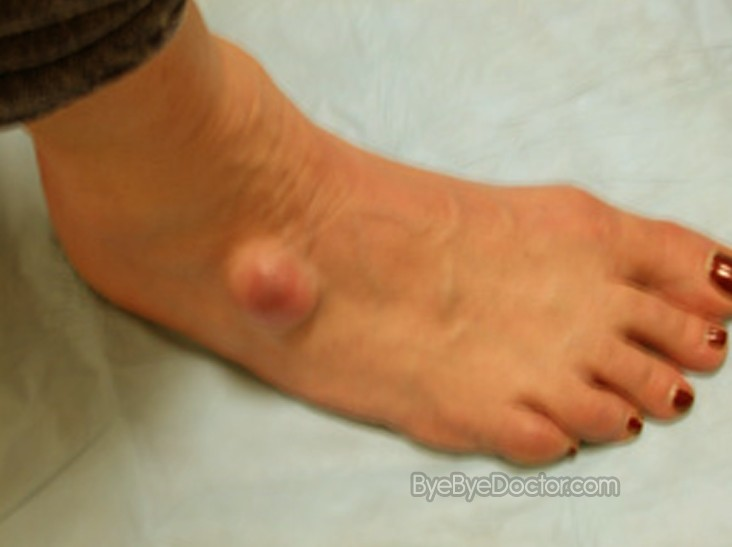 Pictures of Ganglion cyst foot