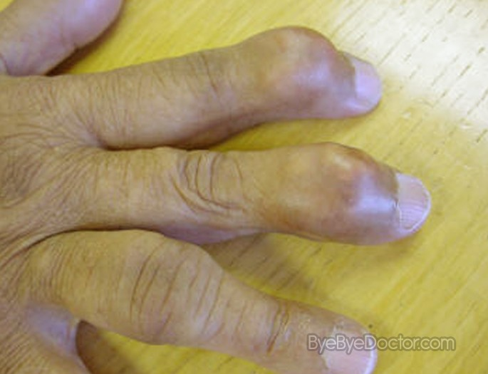 gout symptoms and treatment pdf