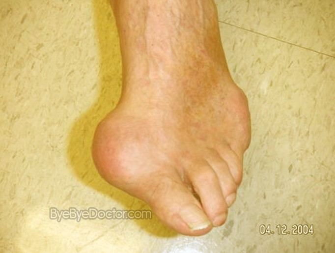 images of gout #10