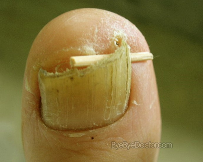 Ingrown Toenail - Remedies, Surgery, Home Treatment, Pictures, Removal