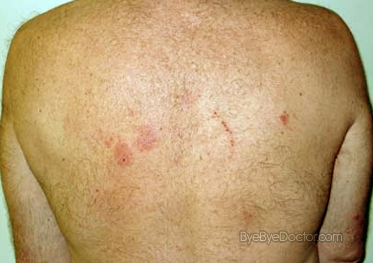 Nummular Dermatitis in Adults: Condition, Treatments, and ...