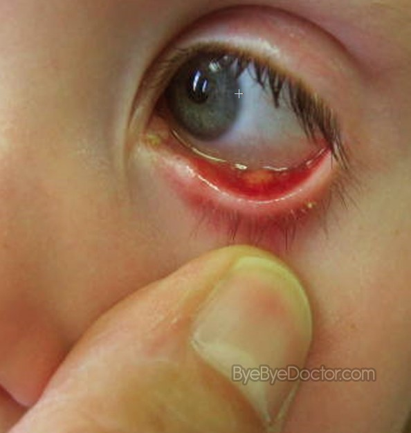 What to use for stye in eye