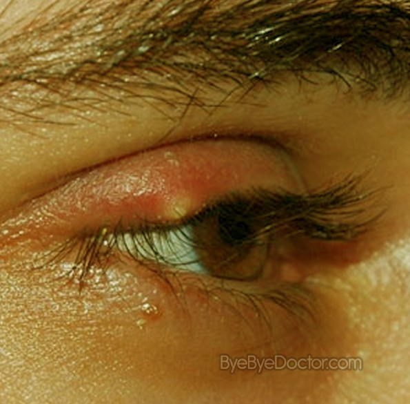 images How to get rid of a stye on under eyelid