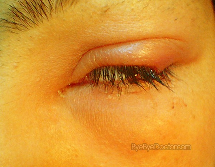 21 Germiest Places Youre Not Cleaning also Eye Makeup Tips Teens besides Stye Eye Symptoms Causes Pictures Treatment Prevention besides 11 ways makeup can damage your eyes as well How Often To Replace Your Mascara. on old mascara eye infection
