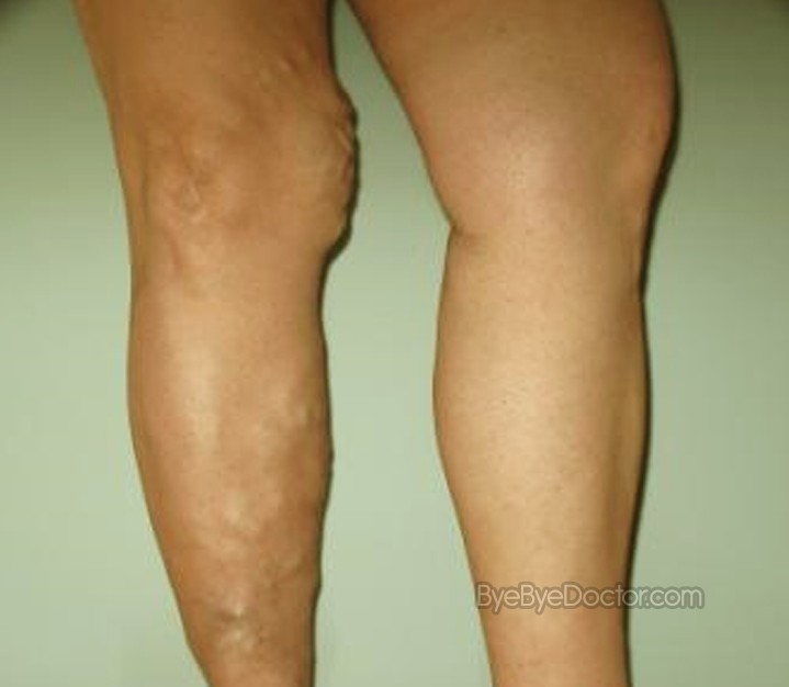 Varicose Veins Removal Cost  Blog Checkgekol12. School Of The Arts Winston Salem. Cannabis Oil For Cancer Treatment. Electrical Engineering Essay. Top Rated Merchant Services Web Hosting Plus. Car Transporter Hire Kent Vehicle Hit And Run. Senior Security Systems System Sound Services. Business Solutions Websites Best Ny Colleges. Motorcycle Insurance Ct Dish Tv Local Channels