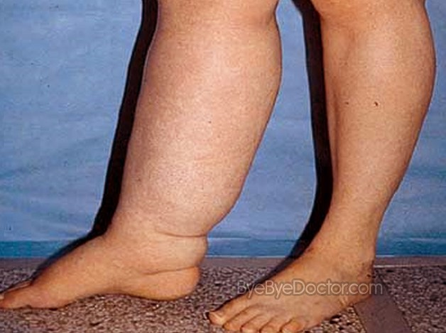 edema – symptoms, causes, types, treatment, pictures, Skeleton