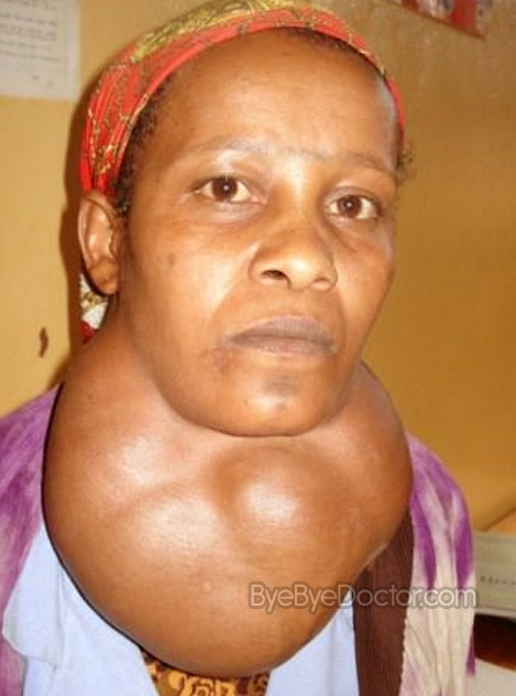 goiter – pictures, symptoms, causes, treatment, surgery, cure, Cephalic Vein