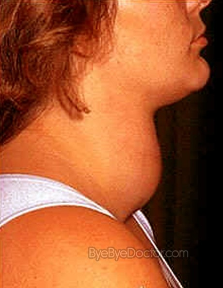 goiter – pictures, symptoms, causes, treatment, surgery, cure, Skeleton