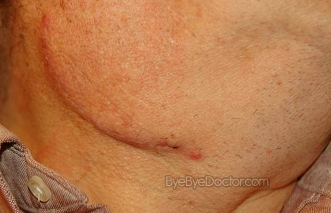 Swollen lymph nodes symptoms causes diagnosis treatment pictures swollen lymph nodes pictures also read ccuart Image collections