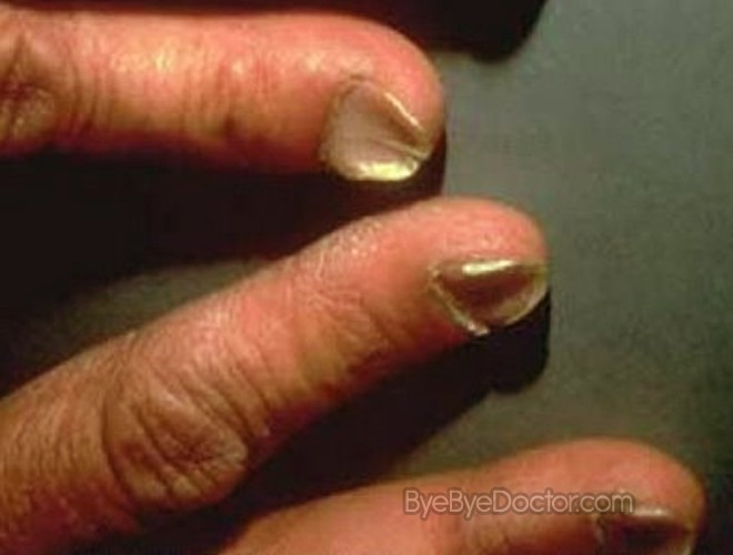 Fingernails of a person with iron-deficiency anemia  : WTF