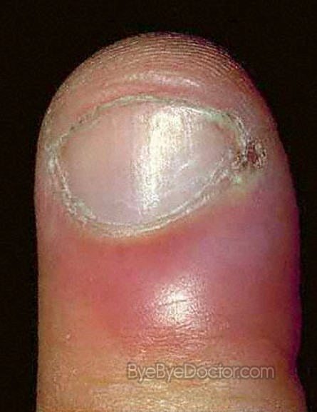 Causes Of Swollen Cuticle: Home Remedies For Acute Paronychia