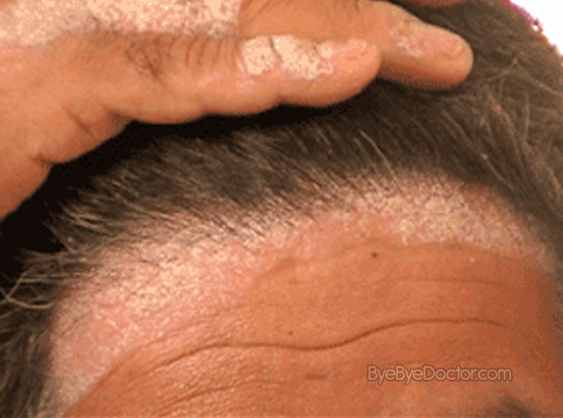 This application is specially useful for psoriasis of the scalp 2